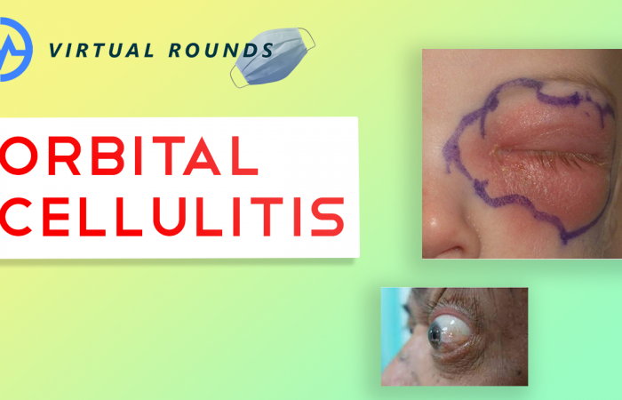 Virtual Rounds Session 8: Orbital Cellulitis (Premed Shadowing)