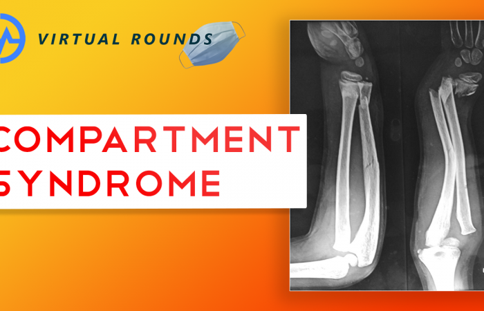 Virtual Rounds Session 11: Compartment Syndrome (Premed Shadowing)